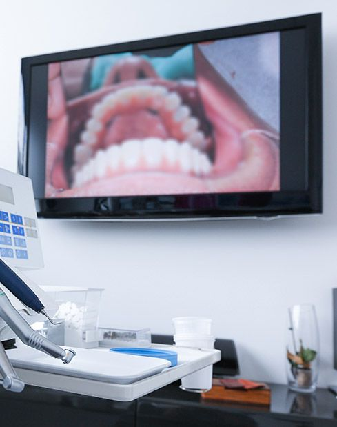 Intraoral images on computer screen