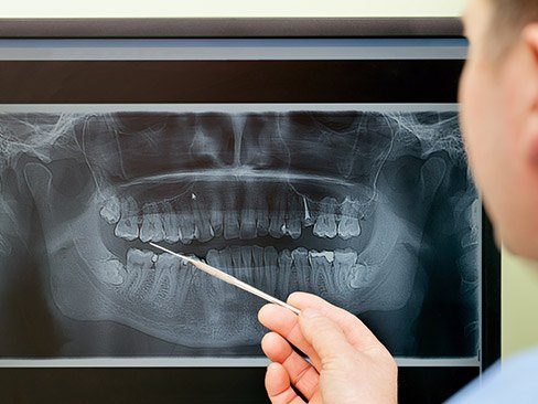 Panoramic dental x-rays on computer screen