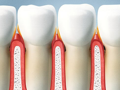 Animation of inflamed gums